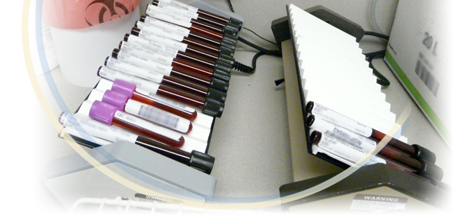 Common Lab Tests Ordered by Rheumatologists at Arthritis and Rheumatism Associates