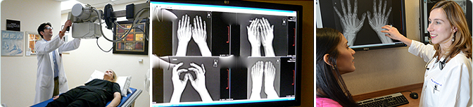 Arthritis and Rheumatism Associates, X-ray Feet, Dr Kaiser, Xray Hands