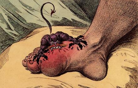article-gout
