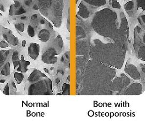 osteo-conditions